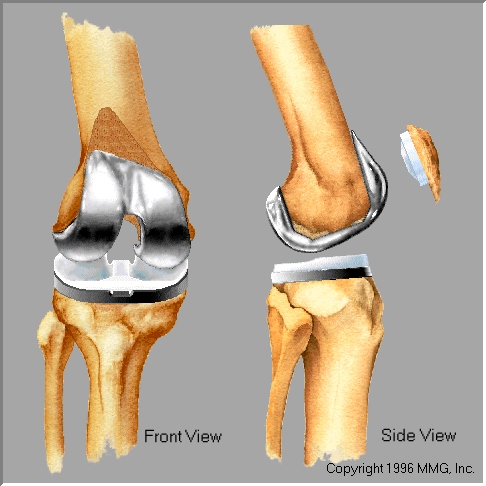 Knee Degenerative Joint Disease Orthopaedic Center Of